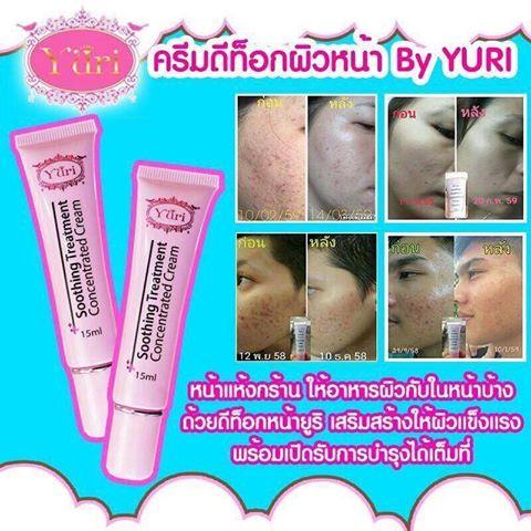 Yuri Detox Cream ยูริ ดีท็อกซ์ ครีมปรับสภาพผิวหน้า สำหรับผู้ที่แพ้สารเคมีสะสม