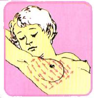 บริเวณที่ตรวจมะเร็งเต้านม