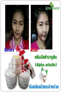 ครีมอัลฟ่าอาบูติน ( Alpha Arbutin )