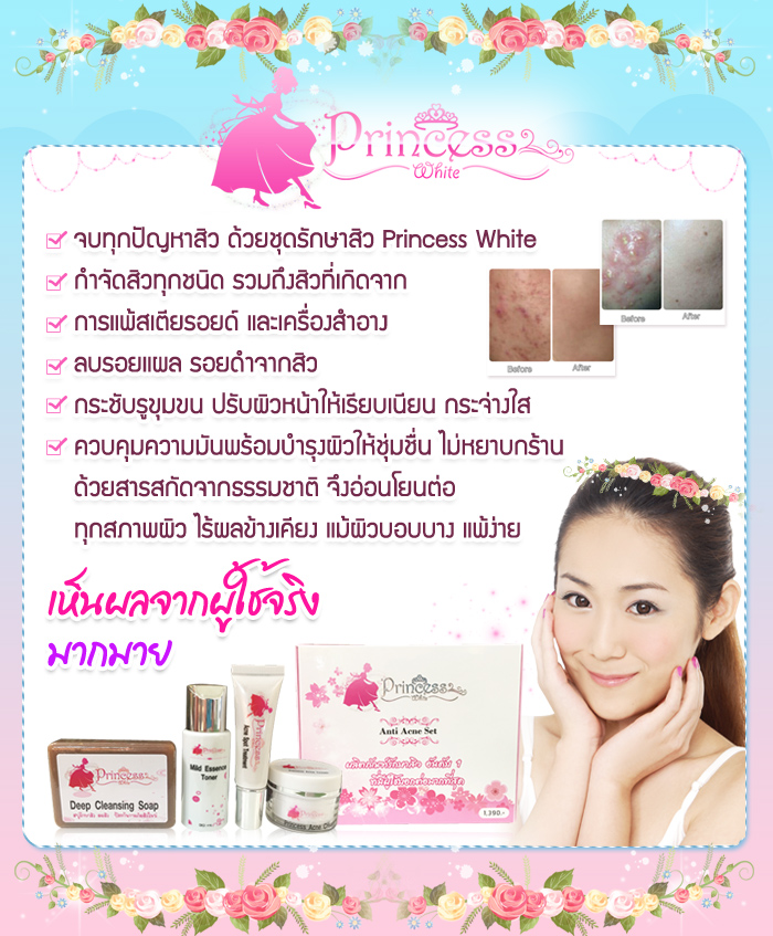 ครีมรักษาสิว Princess White